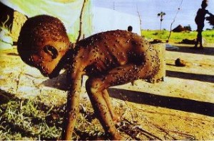 Niño desnutrido